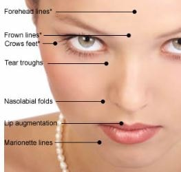 Types of Facial Lines for dermal fillers injections