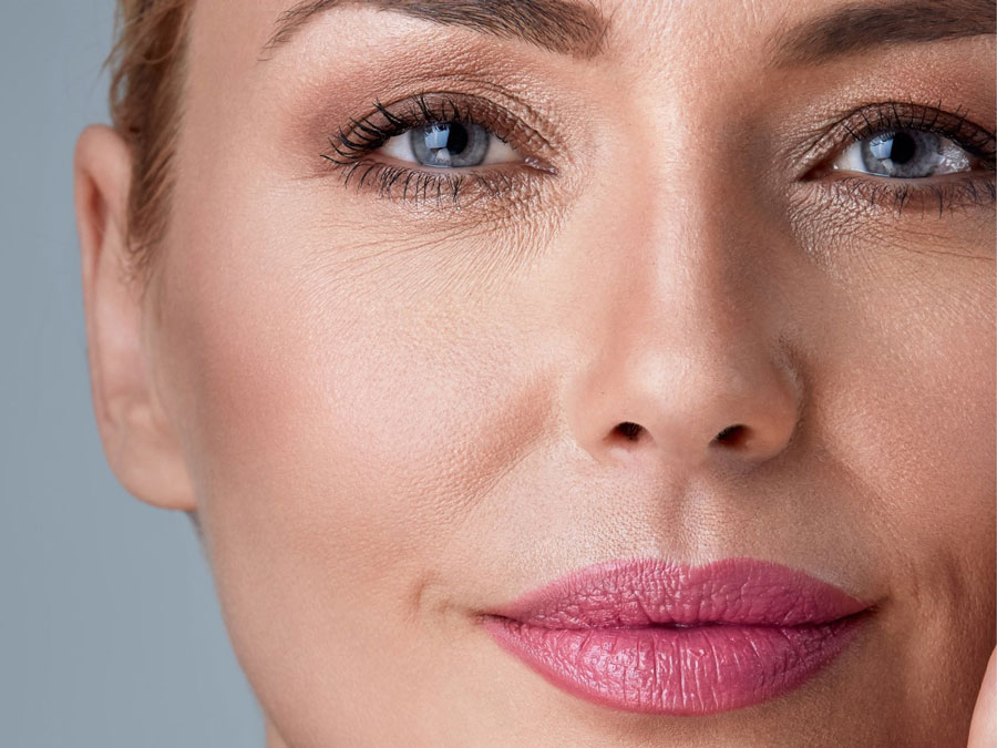 AVOID BRUISING WITH FILLERS BEFORE TREATMENT