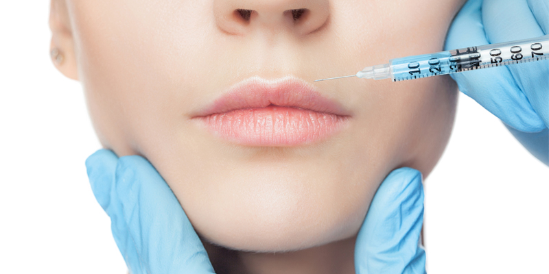 Dermal fillers around the mouth