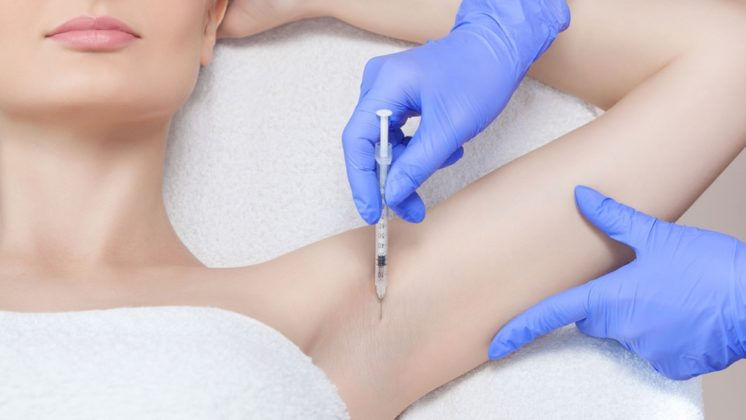 UNDERARM BOTOX PROS AND CONS